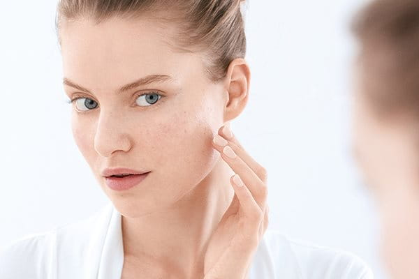 Blemish and acne- prone skin: causes, triggers, symptoms and advice