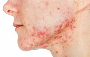 Acne Conglobata is a severe type of acne