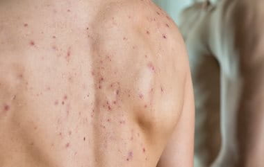 Medicinal acne causes by certain medicines and steroids