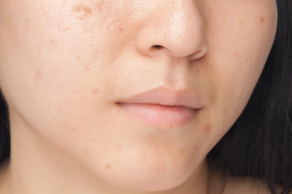 Reducing marks caused by pimples