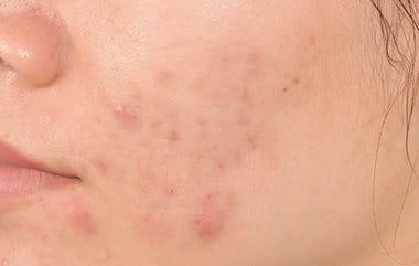 Pimple marks causes by acne