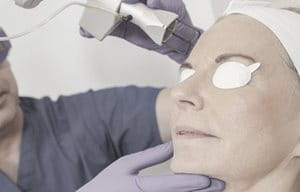Woman getting a facial laser therapy.